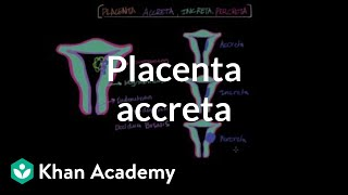 Download Placenta accreta | Reproductive system physiology | NCLEX-RN | Khan Academy Video