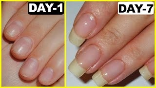 Download How to Grow Nails Faster - GUARANTEED RESULTS | PrettyPriyaTV Video