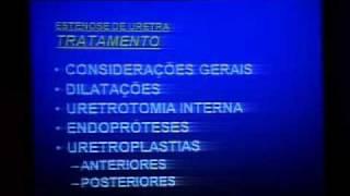 Download Simposium: Cirugia Reconstructiva en Uretra 1-2 Video