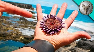 Download SPIKED by a Sea Urchin? Video