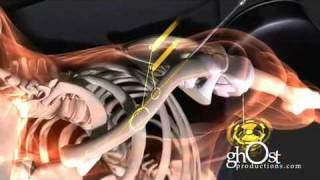Download Medical Animation - Heal: ghOst Production's 2009 Orthopedic Demo Reel Video