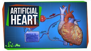 Download The Key to an Artificial Heart ... and Open-Heart Surgery Video