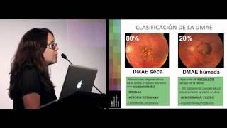 Download Degeneración Macular (DMAE). Dra. Burés de IMO Barcelona (conferencia completa) Video