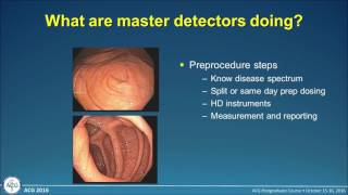 Download Improving Adenoma Detection Rates Video