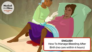 Download How to manage bleeding after birth (no care within 4 hours) Video