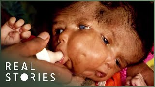 Download The Girl With Two Faces (Medical Documentary) - Real Stories Video