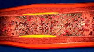 Download Como es la Angioplastia coronaria colocacion de stent Video