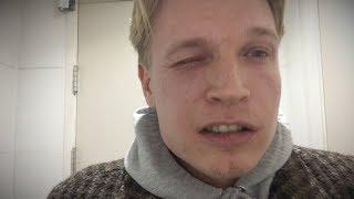 Download Gratis eten door allergie te faken | Gierige Gasten Video