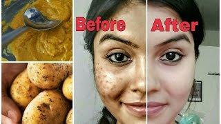Download Remove dark spots in just 7 days | 100% Natural | Get rid of uneven skintone Video