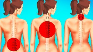 Download 1-Minute Exercises to Improve Posture and Reduce Back Pain Video