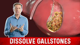 Download How to Dissolve Gallstones Video