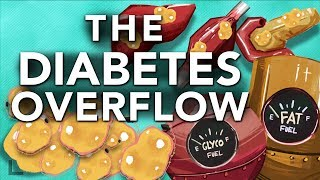 Download Obesity & Diabetes Explained: The Overflow Phenomenon Video