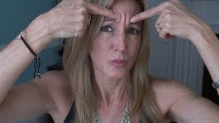 Download My Experience With Botox for Forehead Wrinkles Video