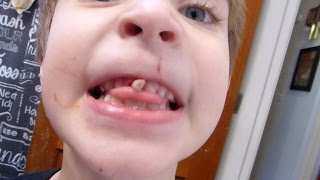 Download Ivan's NASTY loose tooth! Disgusting! Do not watch! Video
