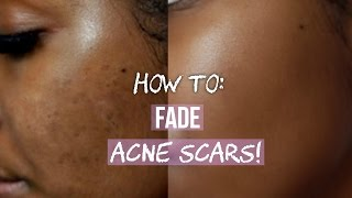 Download HOW TO GET RID OF ACNE SCARS ON FACE & BODY! Video