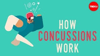 Download What happens when you have a concussion? - Clifford Robbins Video