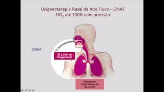 Download Oxigenoterapia de Alto Fluxo Nasal na Insuficiência Respiratória Aguda Parte 1A: Como funciona? Video