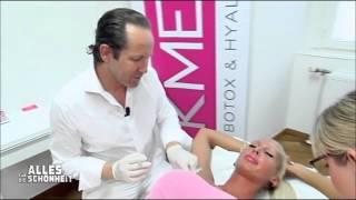 Download Vollere Lippen: Aufspritzung im KMED Instititut von Dr. Knabl in Wien Video