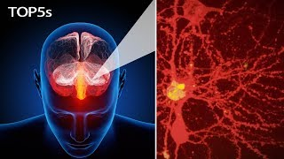 Download 5 Everyday Items & Body Parts That Look Truly Insane Under a Microscope... | Top5s Short Video