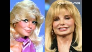 Download Loni Anderson plastic surgery before and after photos Video