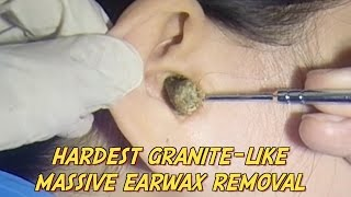 Download Hardest Granite-like Massive Earwax Removal Video