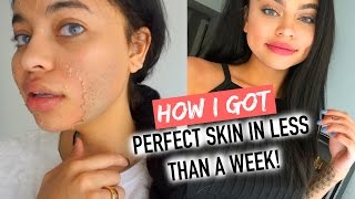 Download HOW I CLEARED MY SKIN IN 1 WEEK ! Video