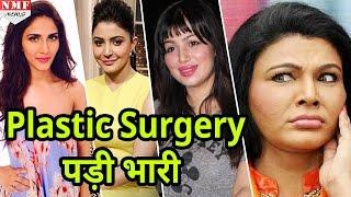 Download मिलिए उन Actresses से जिनके चेहरों को Plastic Surgery ने बिगाड़ा Video