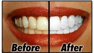 Download How I Whiten My Teeth At Home Video