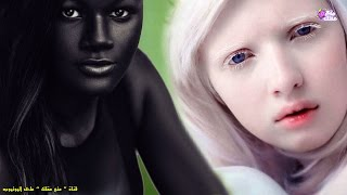 Download 5 فتيات يمتلكن أغرب لون بشرة فى العالم ! Video