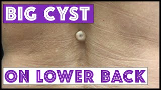 Download BIG cyst on lower back! Video