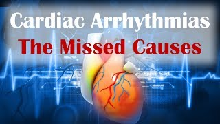 Download Cardiac Arrhythmias - The Missed Cause Video