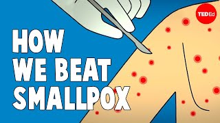 Download How we conquered the deadly smallpox virus - Simona Zompi Video