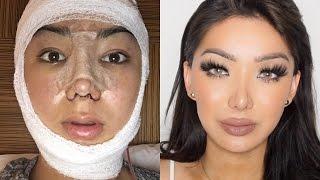 Download My Facial Plastic Surgery Story!   Dragun Video