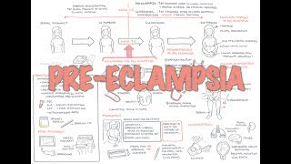 Download Pre Eclampsia - Overview Video