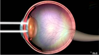 Download Structure and Working of Human Eye Video