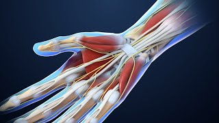 Download Carpal Tunnel Syndrome Video