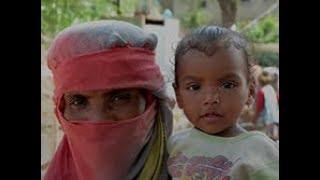 Download The effects of the blockade in Yemen Video