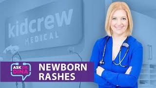 Download Newborn Rashes Video