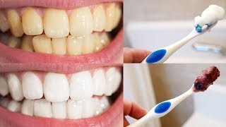 Download 9 Tips for a Perfect Hollywood Smile Video