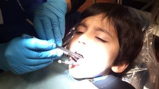 Download Ali at the dentist Video