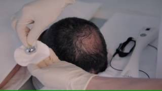 Download Fusion Mesotherapy - Fractional Meso Hair Treatment Video