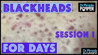 Download Blackheads for Dayzzzz with Dr Pimple Popper: Session 1 Video