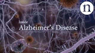 Download Inside Alzheimer's disease Video