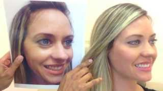 Download Botox & Restylane- Before & After Video