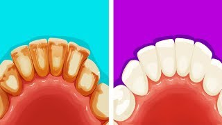 Download 8 Effective Ways to Remove Plaque in Five Minutes Video