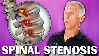 Download Top 3 Exercises For Spinal Stenosis Video
