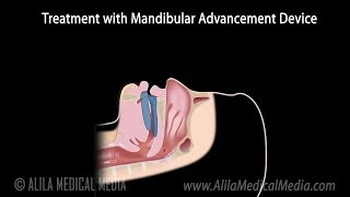 Download Snoring, Obstructive Sleep Apnea and Treatment, Animation. Video