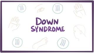 Download Down syndrome (trisomy 21) - causes, symptoms, diagnosis, & pathology Video