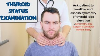 Download Thyroid Status Examination - OSCE Guide Video