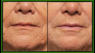 Download HOW TO GET RID OF DEEP MOUTH WRINKLES | HOW TO REDUCE AND REMOVE MOUTH WRINKLES | Khichi Beauty. Video